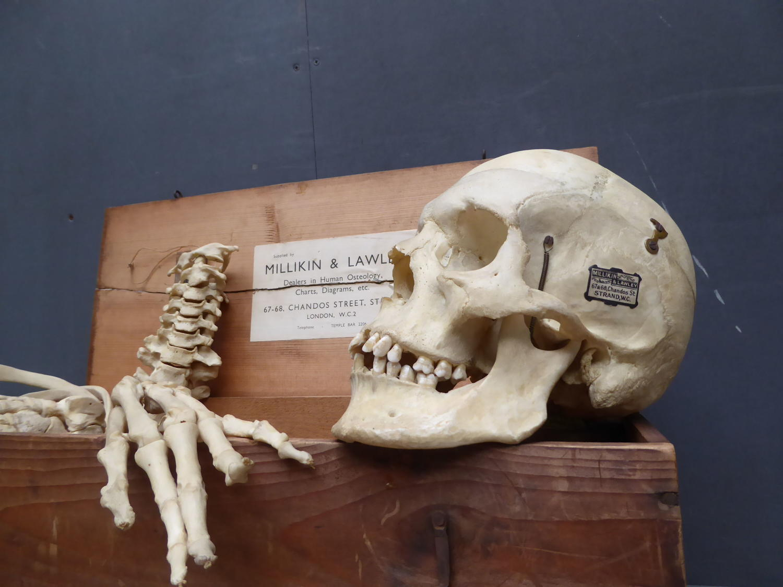 Human Half Medical Skeleton By Millikin & Lawley
