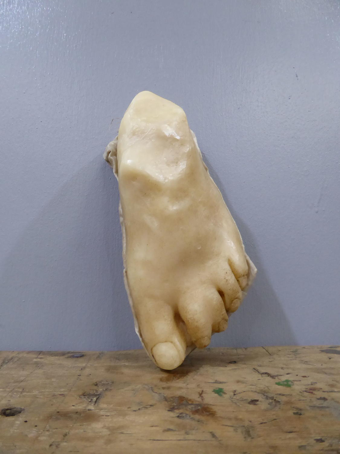 Webbed Feet ~ Wax Medical Moulage