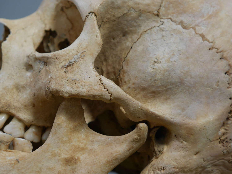 Domed Human Skull Specimen